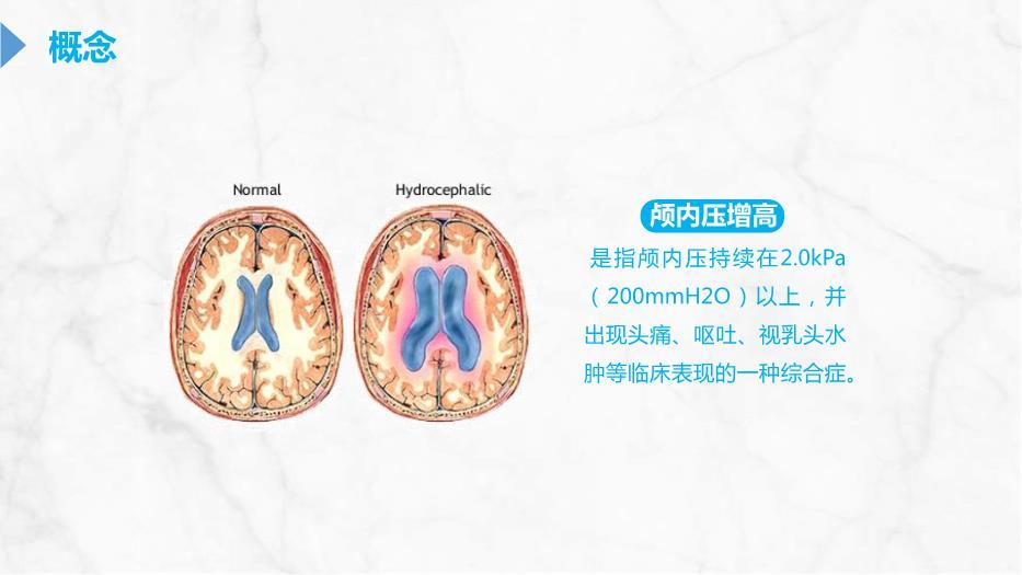 医学课件、颅内压增高的处理护理PPT课件
